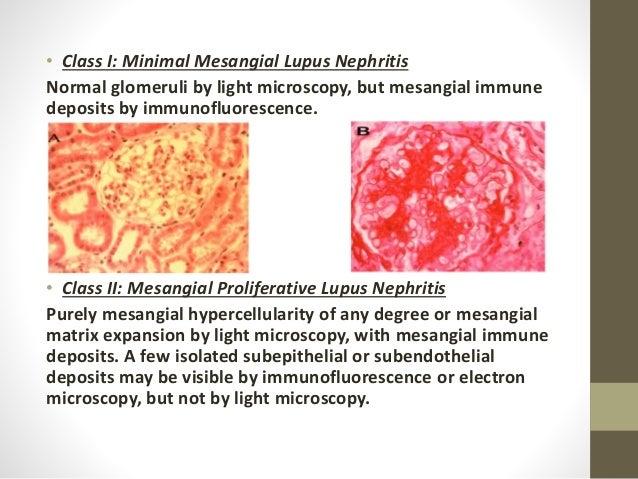 Lupus Nephritis Type Mesangial Lupus Nephritis