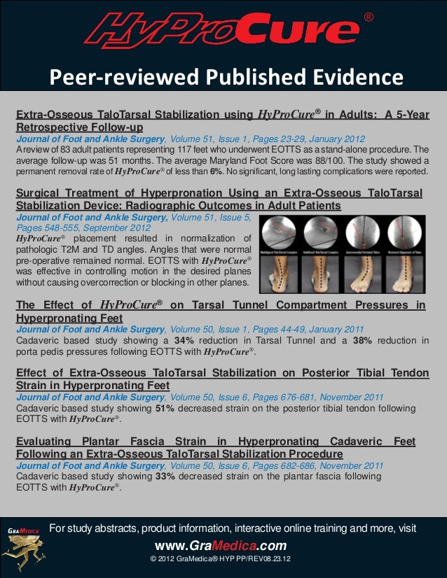 Peer-reviewed Published EvidenceExtra-Osseous TaloTarsal Stabilization using HyProCure® in Adults: A 5-YearRetrospective F...