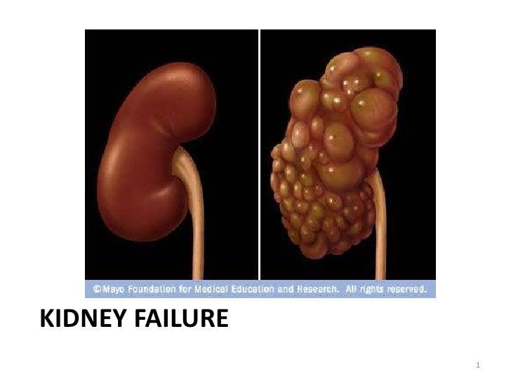 Kidney Failure<br />1<br />