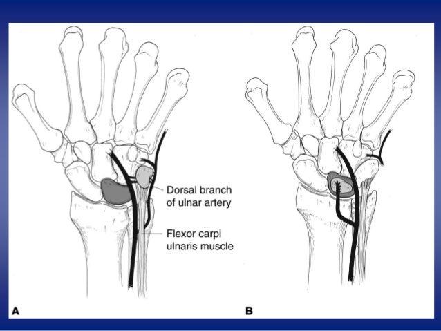 Ulnar Tuberosity Kienbock,s diseases