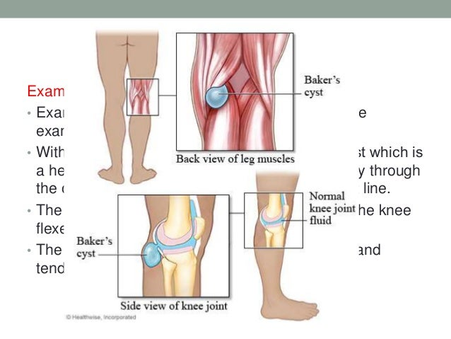 Anatomy of leg and knee