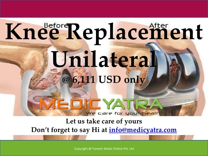 Knee Replacement   Unilateral           @ 6,111 USD only             Let us take care of yours  Don't forget to say Hi at ...