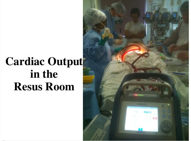 Cardiac Output in the Resus Room
