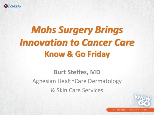 Mohs Surgery BringsInnovation to Cancer CareKnow & Go FridayBurt Steffes, MDAgnesian HealthCare Dermatology& Skin Care Ser...