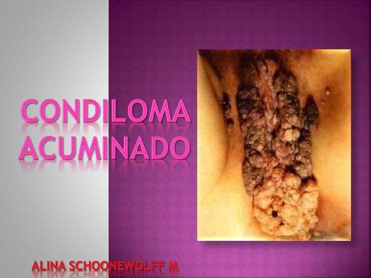 Condiloma vaginal
