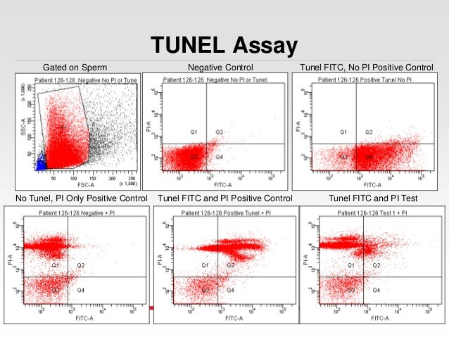 flow cytometry and important of measuring 2016-3-9  dna measurement and cell cycle analysis by flow cytometry rafael nunez  important to exclude debris and aggregates, as they.