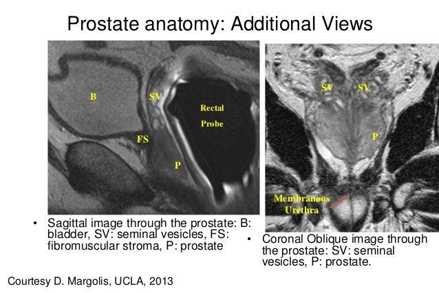 Prostate images anatomy