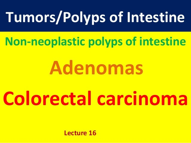 Tumors/Polyps of IntestineNon-neoplastic polyps of intestineAdenomasColorectal carcinomaLecture 16