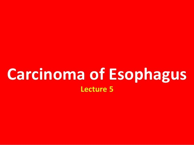 Carcinoma of EsophagusLecture 5