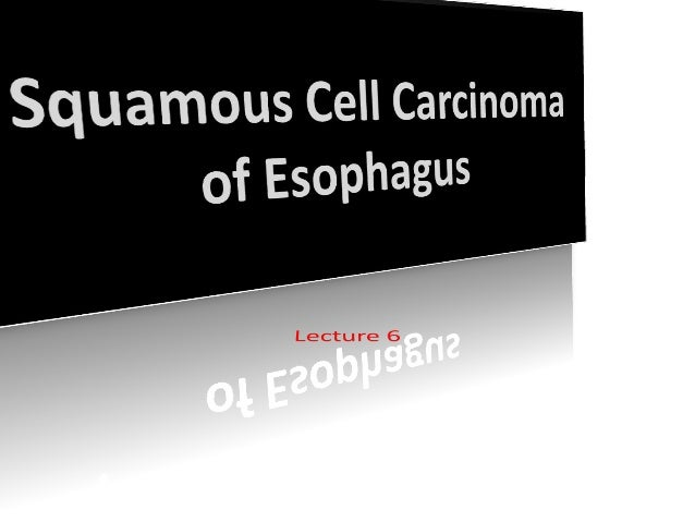 L6 squamous cell carcinoma of esophagus