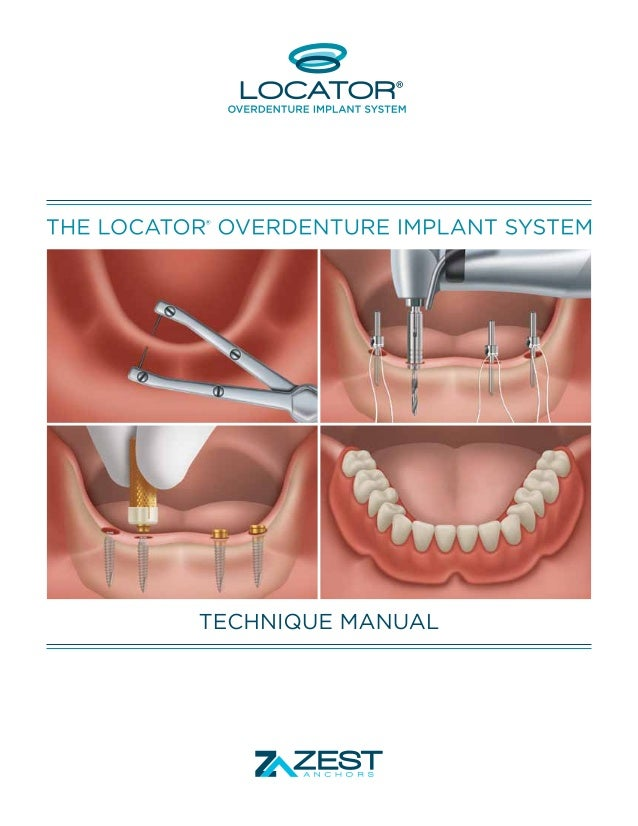 THE LOCATOR OVERDENTURE IMPLANT SYSTEM. ®  FOUR DECADES OF ATTACHMENT KNOWLEDGE INCORPORATED INTO NARROW DIAMETER OVERDENT...