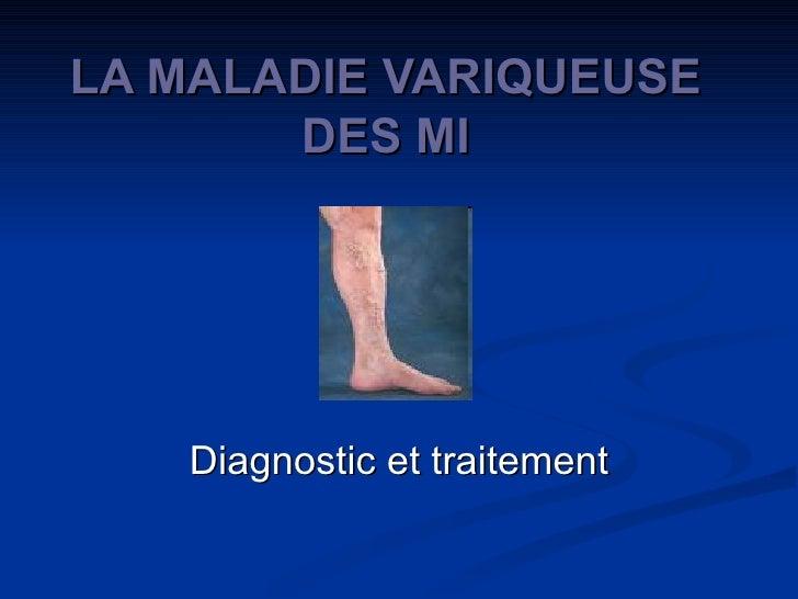 LA MALADIE VARIQUEUSE DES MI Diagnostic et traitement