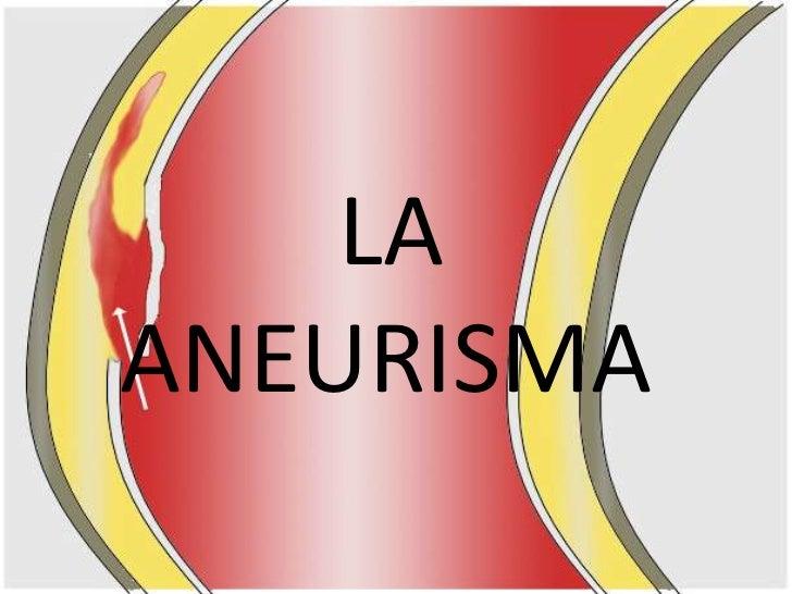 LA ANEURISMA<br />