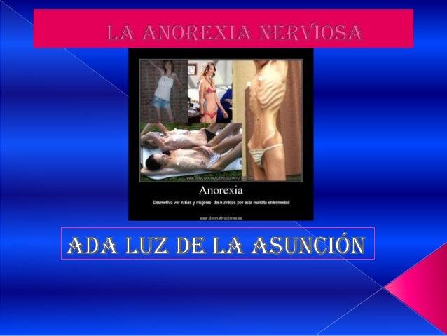 •    La anorexia nerviosa es una enfermedad     muy grave que puede llegar a ser incluso    mortal. Aunque puede afectar a...