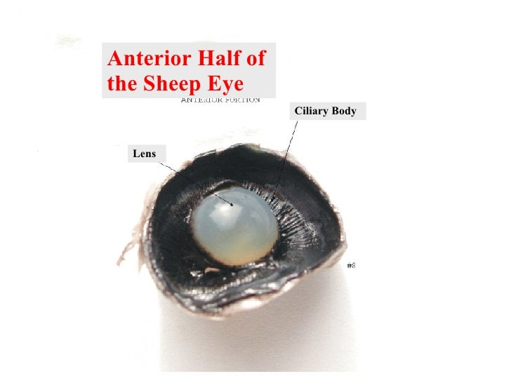 My Interactive Image ThingLink – Sheep Eye Dissection Worksheet