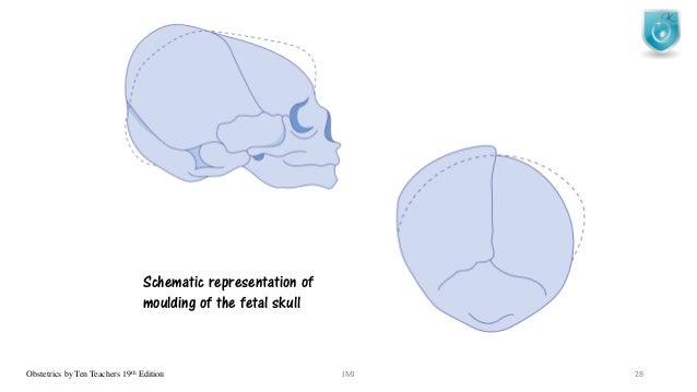 Fetal Skull Moulding The Fetal Skull Obstetrics