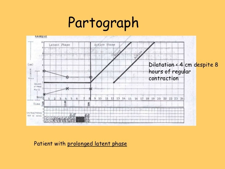 contraindications for amitriptyline