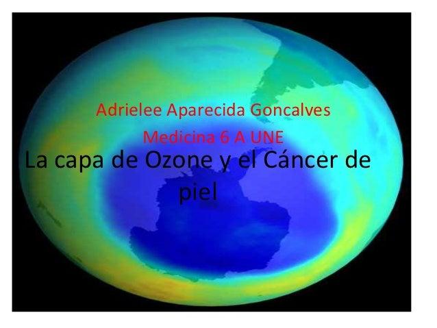 Adrielee Aparecida Goncalves            Medicina 6 A UNELa capa de Ozone y el Cáncer de             piel