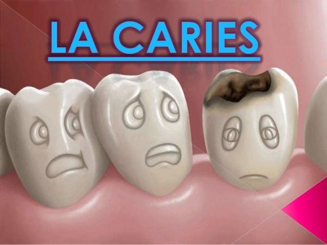 Caries dentales  Son perforaciones (o daño estructural) en los dientes.  Suelen aparecer en los niños y en los adultos j...