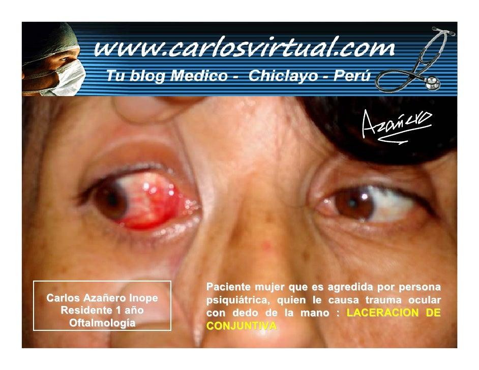 Paciente mujer que es agredida por persona Carlos Azañero Inope   psiquiátrica, quien le causa trauma ocular   Residente 1...