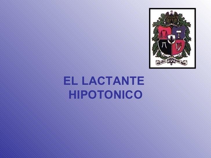 EL LACTANTE  HIPOTONICO
