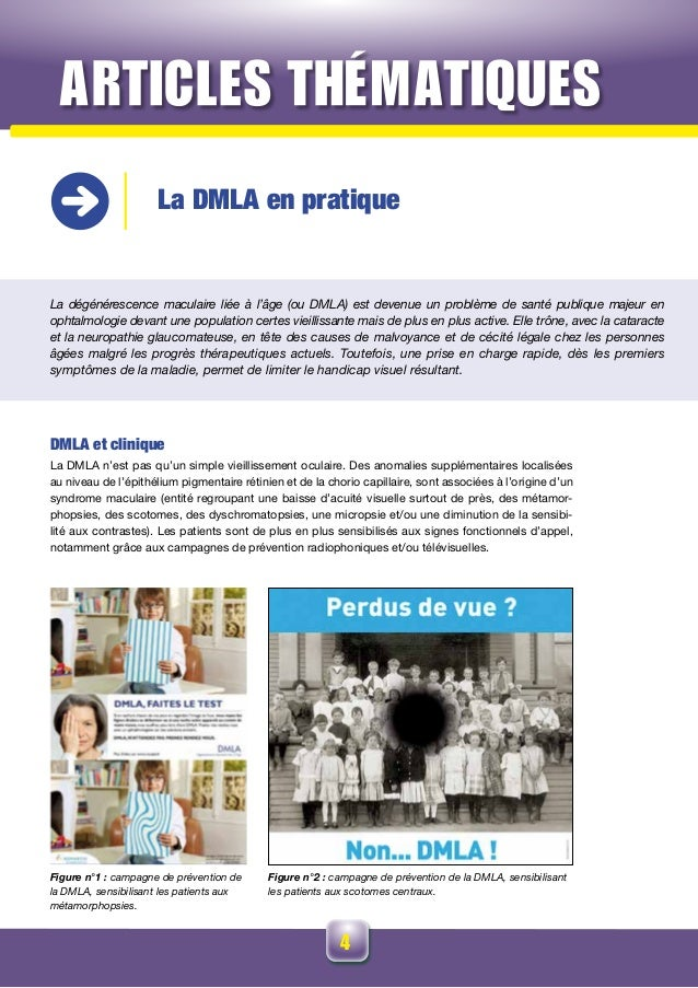 4 La DMLA en pratique La dégénérescence maculaire liée à l'âge (ou DMLA) est devenue un problème de santé publique majeur ...