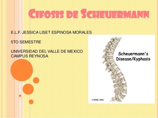 CIFOSIS DE SCHEUERMANN E.L.F. JESSICA LISET ESPINOSA MORALES 5TO SEMESTRE UNIVERSIDAD DEL VALLE DE MEXICO CAMPUS REYNOSA