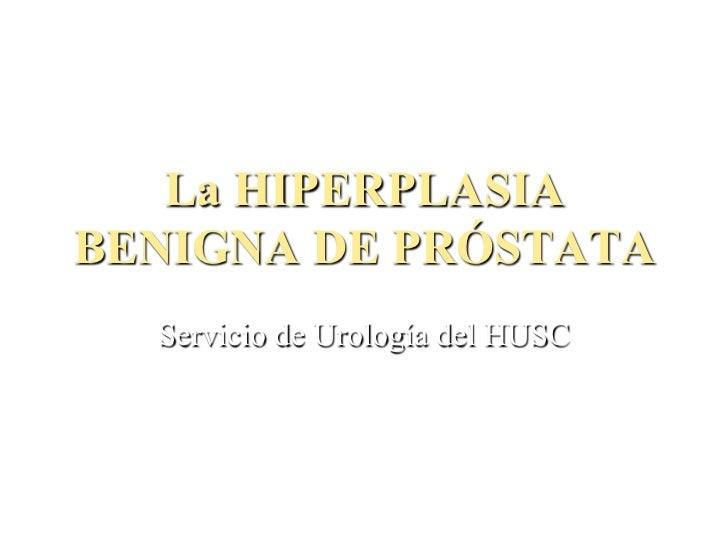 La HIPERPLASIABENIGNA DE PRÓSTATA  Servicio de Urología del HUSC