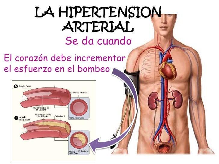 La hipertension arterial - Alimentos para la hipertension alta ...