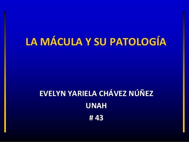 LA MÁCULA Y SU PATOLOGÍA  EVELYN YARIELA CHÁVEZ NÚÑEZ             UNAH              # 43