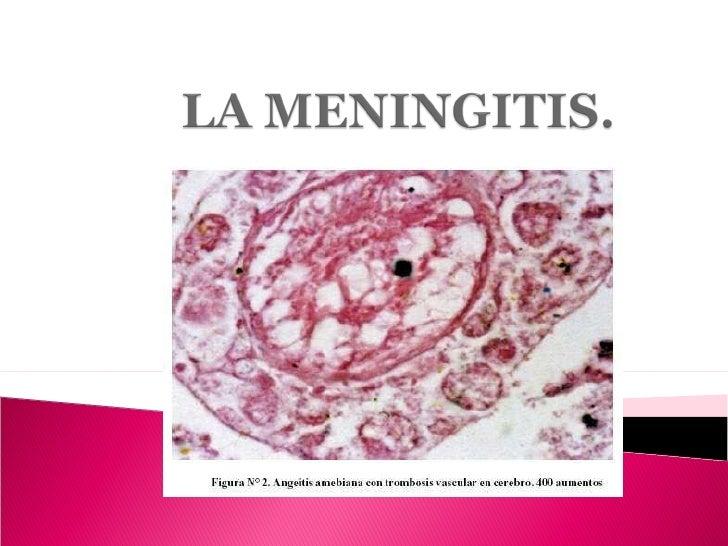 La Meningitis