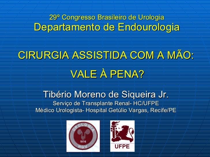 29 º Congresso Brasileiro de Urologia Departamento de Endourologia CIRURGIA ASSISTIDA COM A MÃO: VALE À PENA? Tibério More...