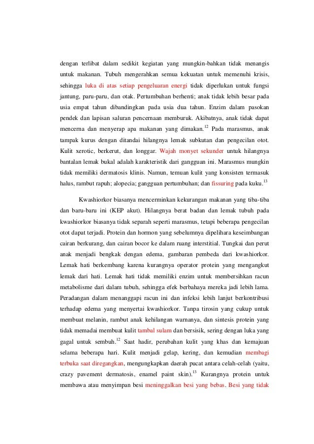 faktor resiko marasmus pdf free