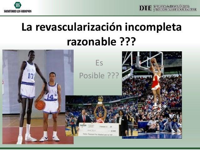 La revascularización incompleta razonable ??? Es Posible ???