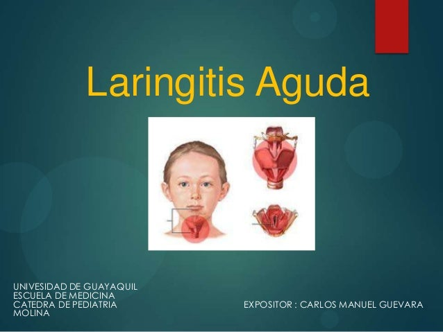 Laringitis AgudaUNIVESIDAD DE GUAYAQUILESCUELA DE MEDICINACATEDRA DE PEDIATRIA      EXPOSITOR : CARLOS MANUEL GUEVARAMOLINA