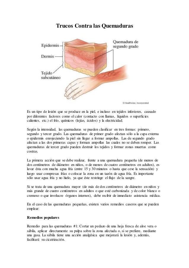 Trucos Contra las Quemaduras Es un tipo de lesión que se produce en la piel, e incluso en tejidos inferiores, causado por ...