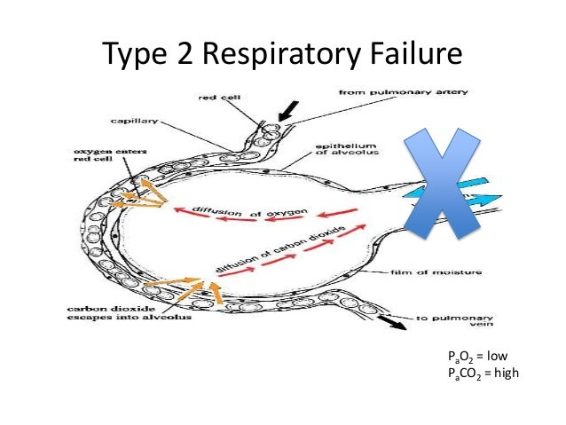 respiratory failure nursing case study