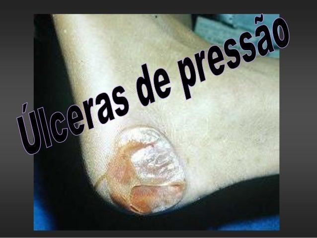  As úlceras de pressão são definidas como áreas de ulceração e necrose da pele e tecidos moles de qualquer parte do corpo...