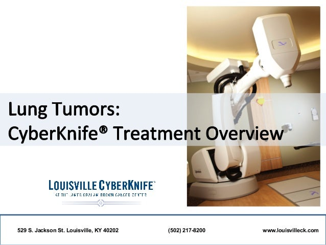 Lung Tumors: Louisville CyberKnife Treatment Overview