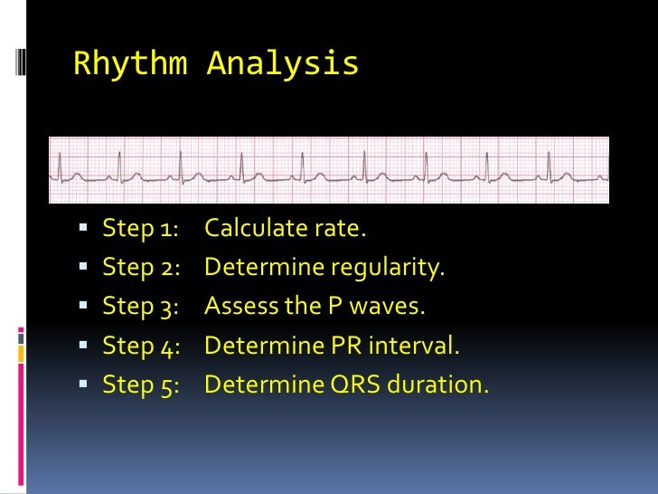 Rhythm Analysis<br />Step 1:	Calculate rate.<br />Step 2:	Determine regularity.<br />Step 3:	Assess the P waves.<br />Step...