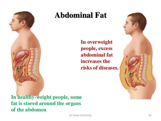 how to lose abdominal fat men
