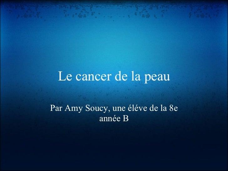 Le cancer de la peauPar Amy Soucy, une éléve de la 8e           année B