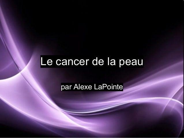 Le cancer de la peau par Alexe LaPointe