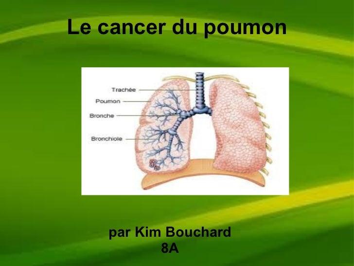 Le cancer du poumon par Kim Bouchard 8A