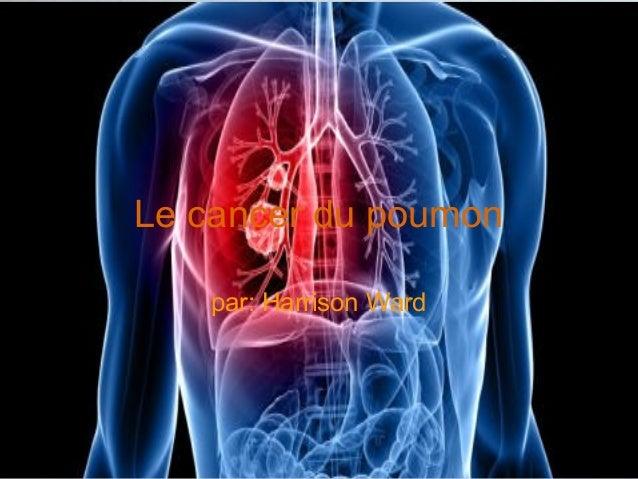 Le cancer du poumon par: Harrison Ward