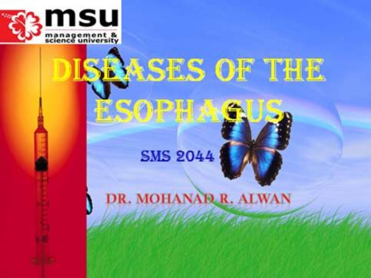 Lect.3.diseases of  esophagus
