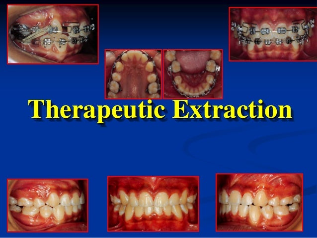 Therapeutic Extraction