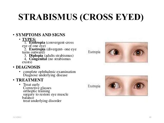 With you Treatment strabismus adults can not