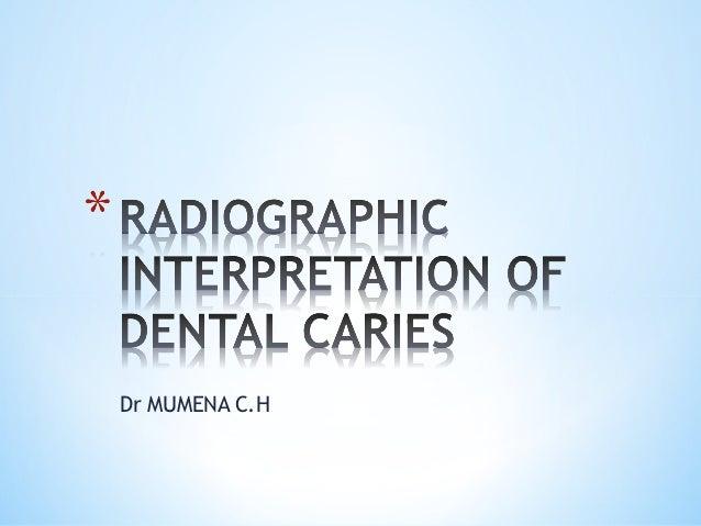 Lecture 5 b_radiographic_interpretation_dental_caries_2012