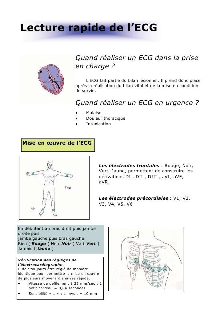 Lecture rapide de l'ECG                              Quand réaliser un ECG dans la prise                              en c...